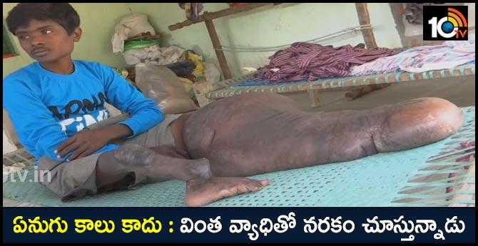 karimnagar youth suffering from strange disease