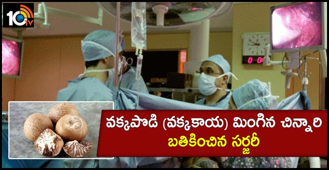 Tamil nadu doctors perform successful surgery on toddler who swallowed Areca nut