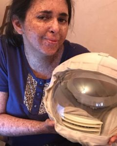 Woman allergic to the sun hasn't been out in daylight for 20 years without a mask