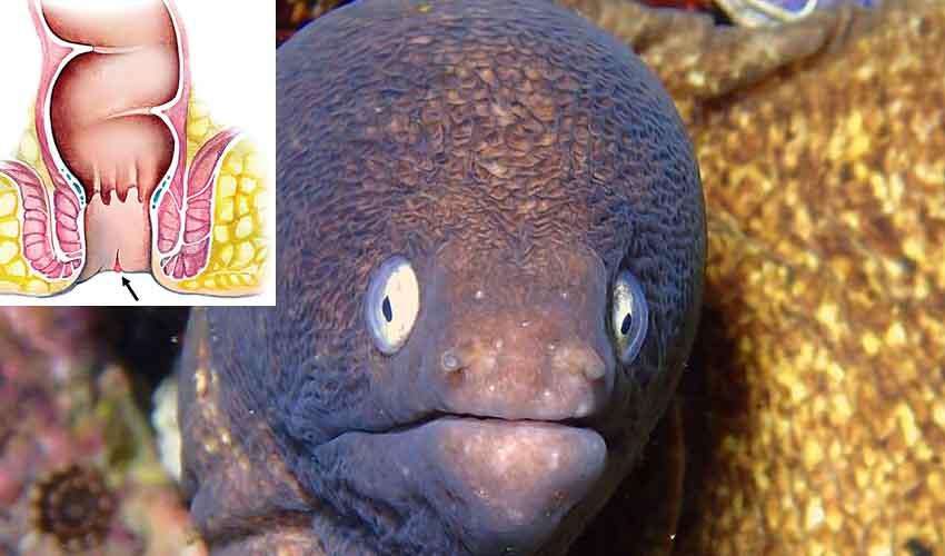 Eel Fish Anus : వీడెవడండీ బాబూ.. మలద్వారంలోకి చేపను పంపి ప్రాణాల మీదకు తెచ్చుకున్నాడు