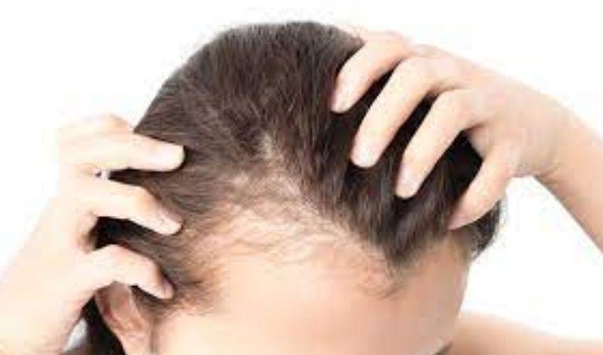 Hair Loss: జుట్టు రాలుతుందా? సమస్యకు చెక్ పెట్టండి ఇలా..