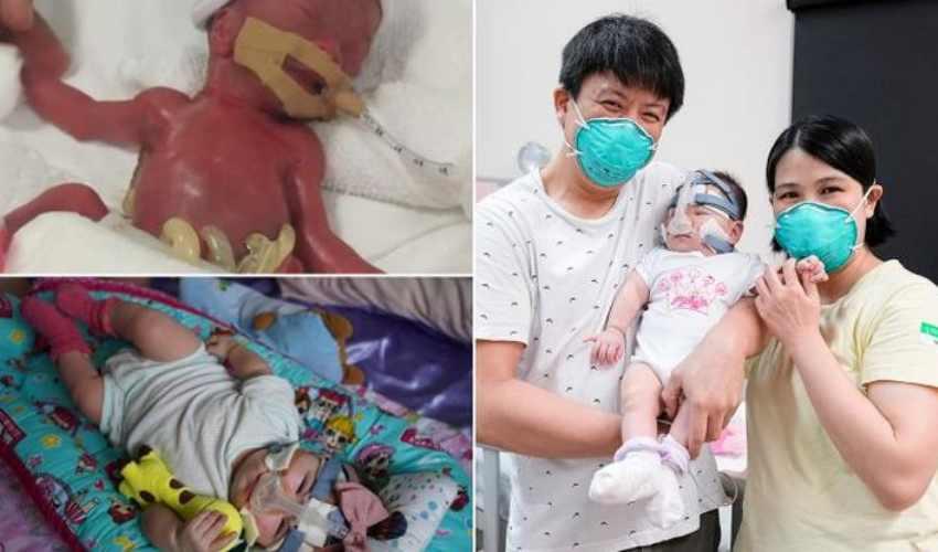 World Smallest Baby : 212 గ్రాముల బరువుతో పుట్టిన శిశువు.. 13 నెలల పోరాటం తరువాత క్షేమంగా ఇంటికి!