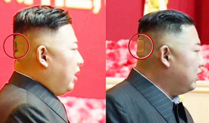 Kim Jong Un : కిమ్ తలకు బ్యాండేజీ..ఇప్పుడిదే హాట్ టాపిక్