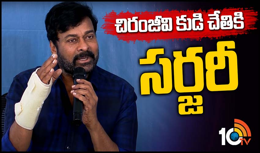 https://10tv.in/exclusive-videos/surgery-to-megastar-chiranjeevi-right-hand-293749.html