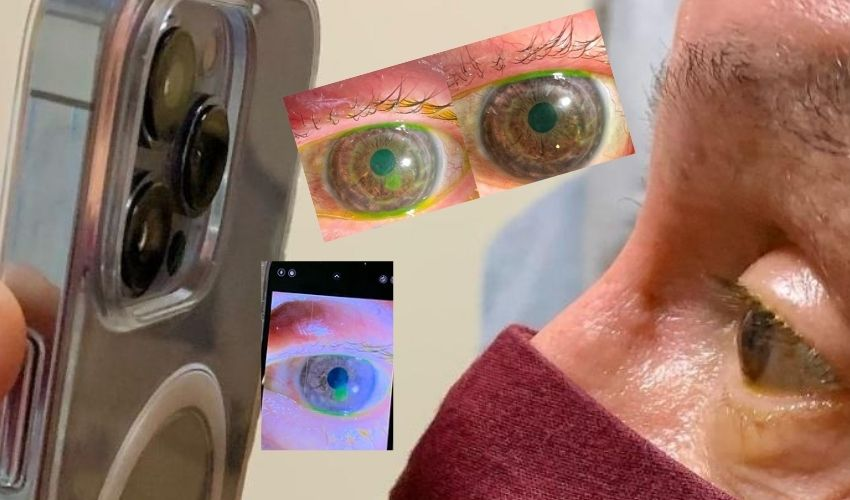 https://10tv.in/latest/us-ophthalmologist-dr-tommy-korn-use-iphone-13-pro-max-camera-for-eye-treatment-285899.html