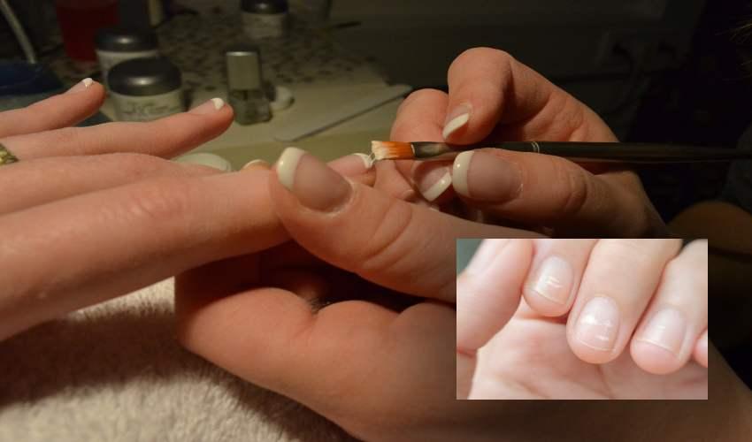 Nails : మీరు ఆరోగ్య వంతులో.. కాదో…గోళ్ళు చూసి చెప్పొచ్చా?